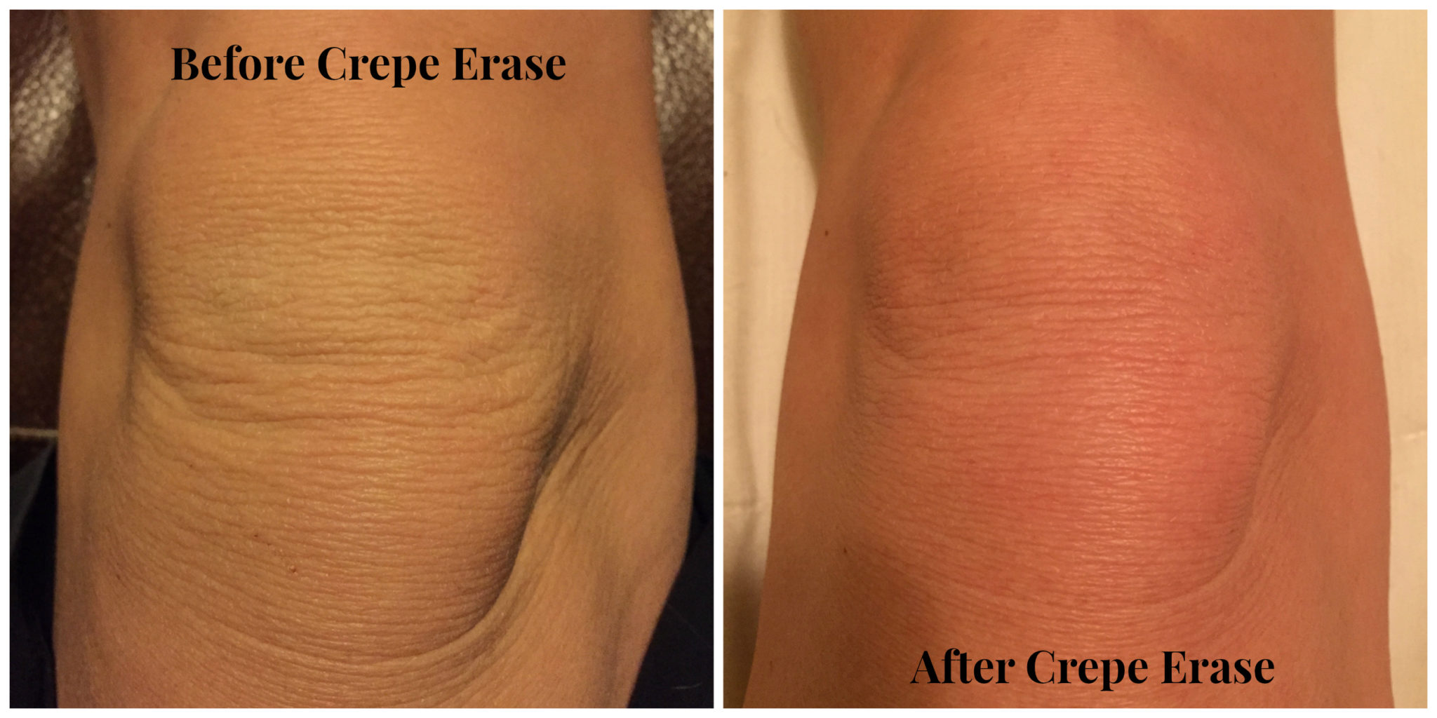 Crepe Erase Review