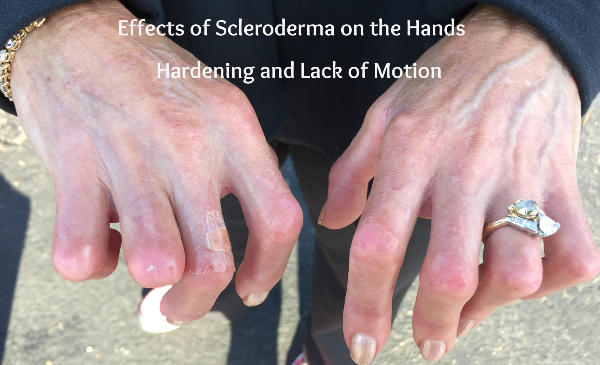 Pledge to Share About Scleroderma